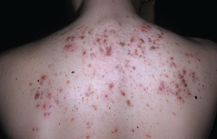 Уход за лицом при проблемной кожи