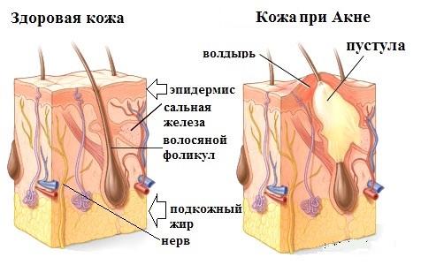 от чего появляются паразиты в организме человека