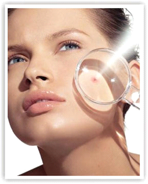 Воспаление на лице: причины, уход, рецепты масок